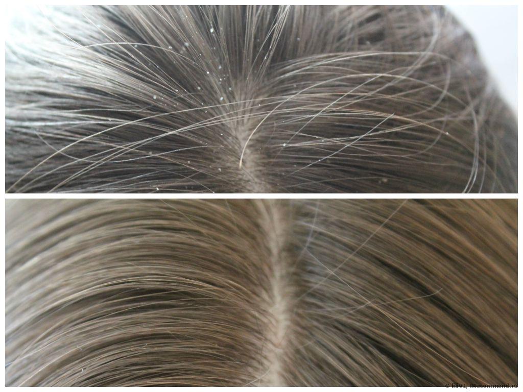 лечение от перхоти, до и после