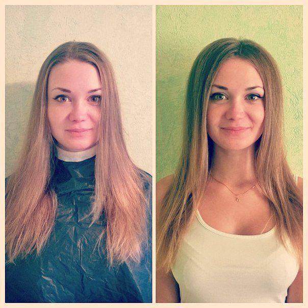 Буст ап, фото до и после
